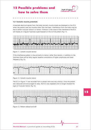 ECG Manual p21